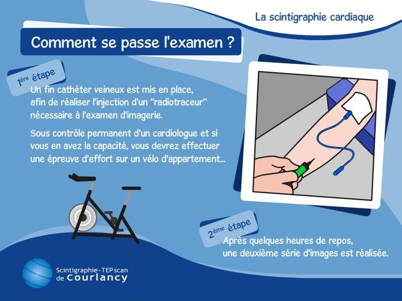Scintigraphie Cardiaque L Examen De Scintigraphie Myocardique